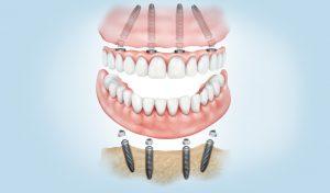 implants dentals a Manresa