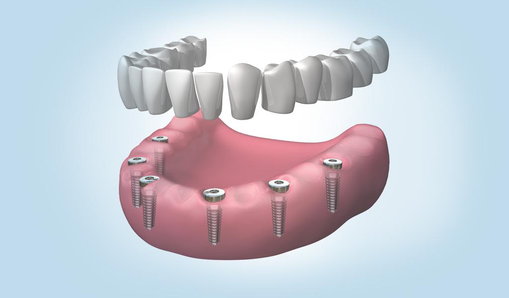 Última tecnologia en implants dentals a Manresa