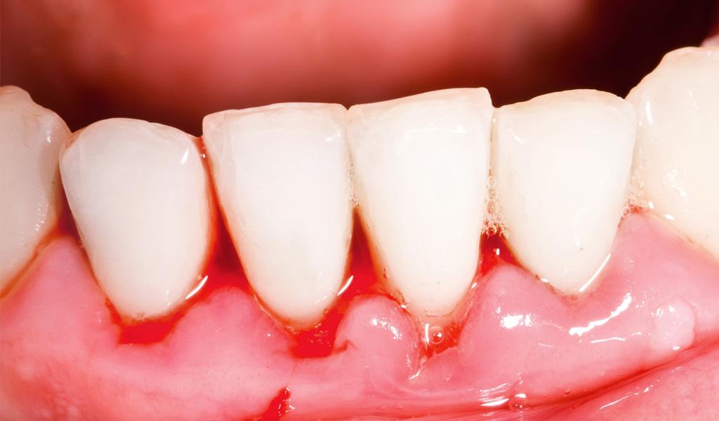 urgències dentals a Manresa