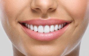 Estètica dental a Manresa