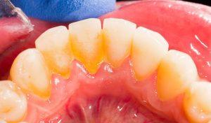 Higiene dental a Manresa