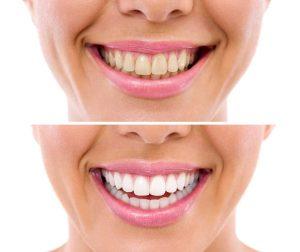 blanquejament dental a Manresa